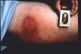 Ringformet rødmen efter smitte med Borrelia-bakterier